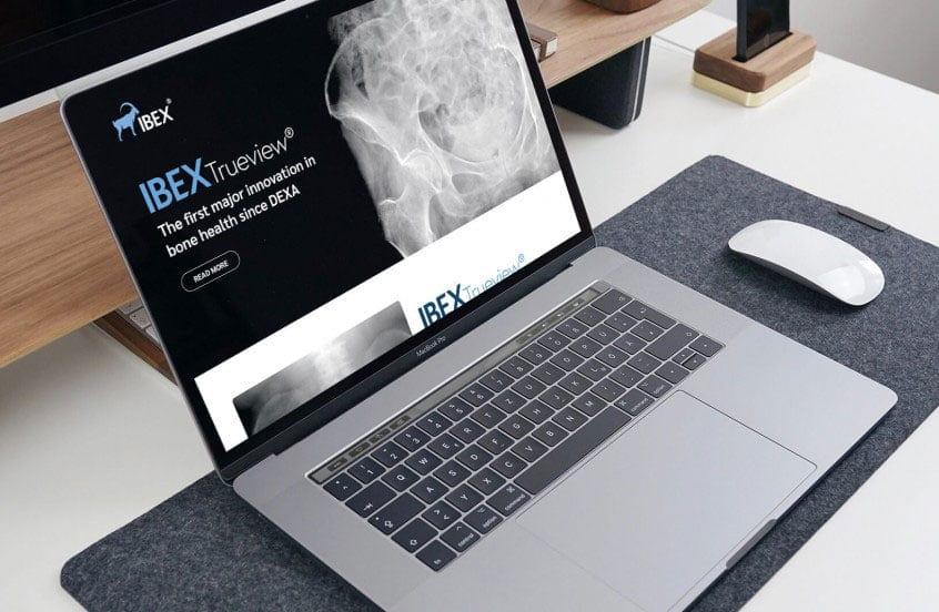 IBEX Medical
