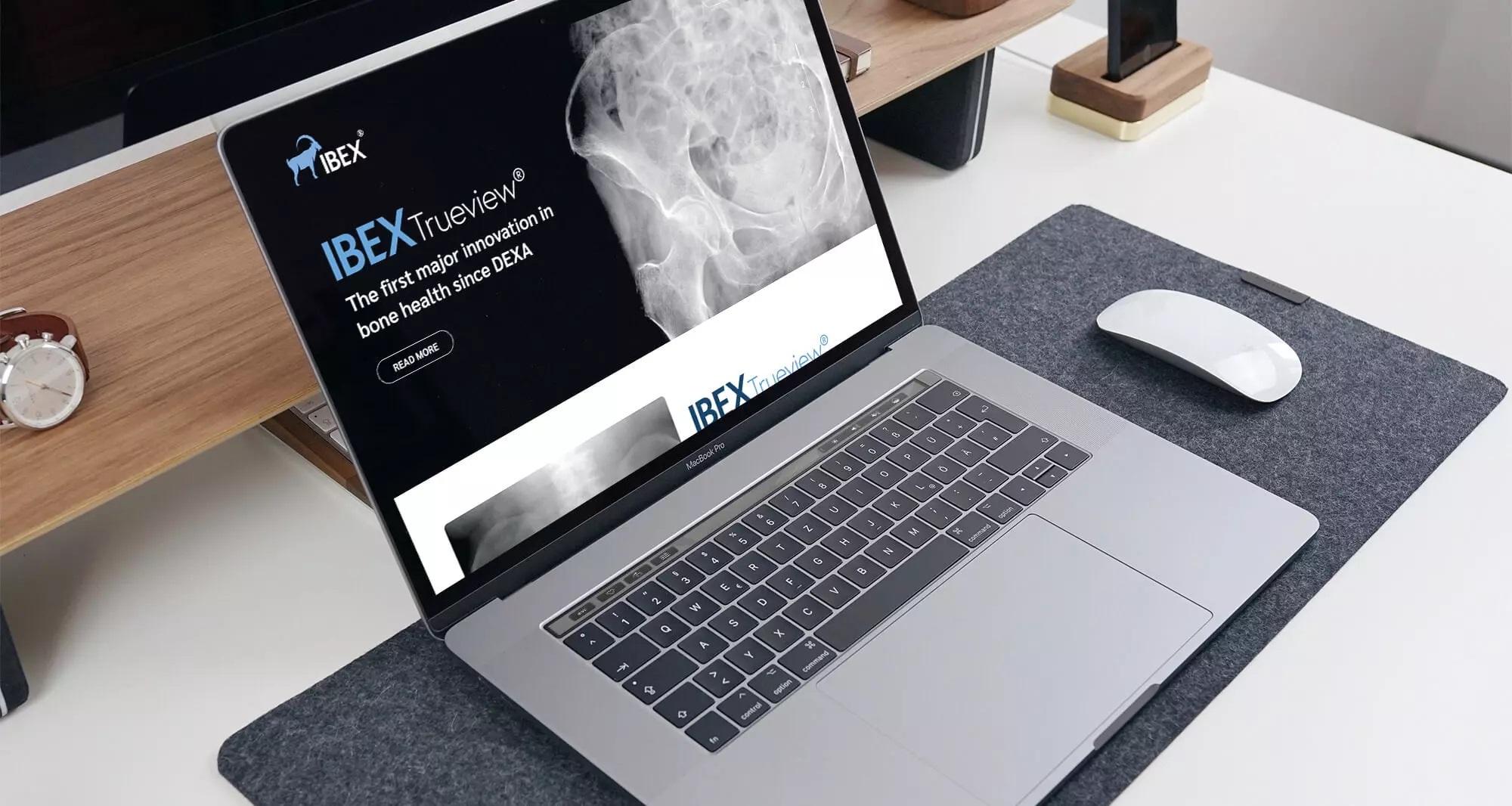 IBEX Medical website